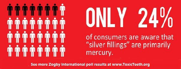 silver fillings